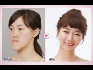 韓国人の整形